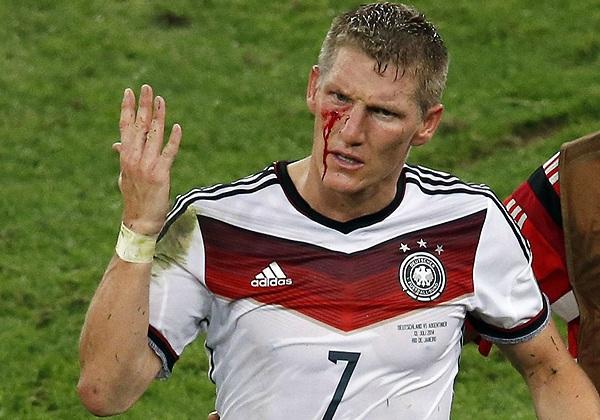 Полузащитник сборной Германии Бастиан Швайнштайгер получил рассечение по ходу финального матча.