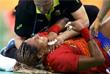 Испанская гандболистка Марта Манге получила травму во время матча против Норвегии