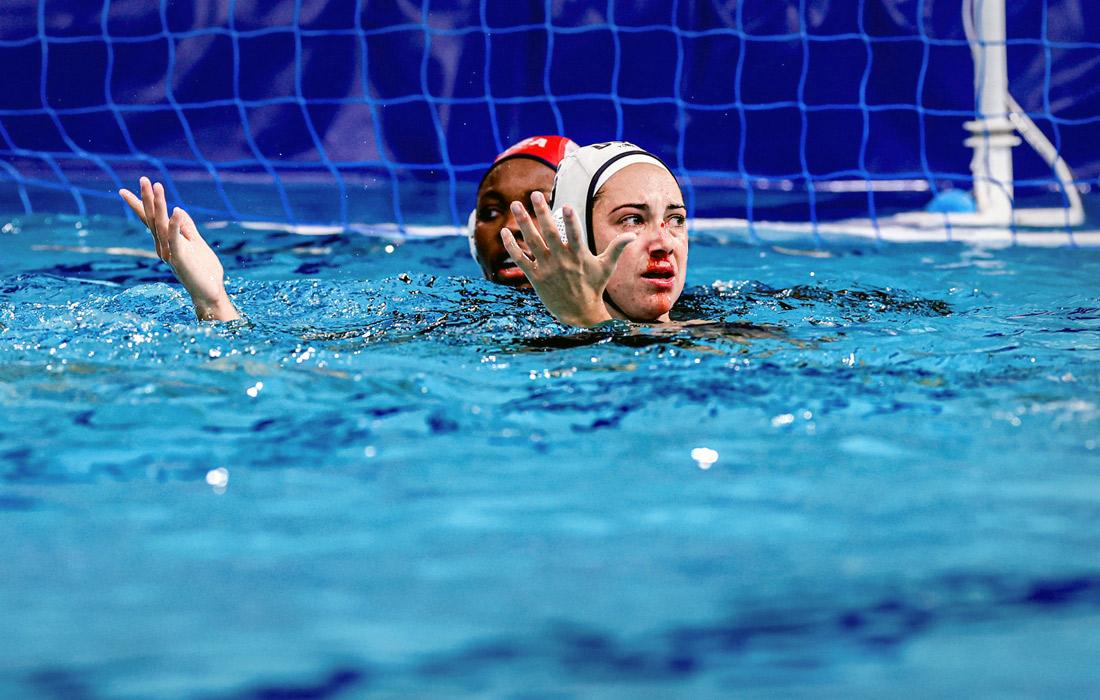 Эшли Джонсон и Маргарет Стеффенс из Соединенных Штатов получили травму во время женского матча по водному поло
